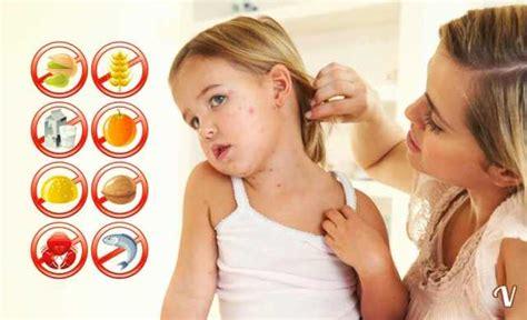 intossicazione alimentare sintomi sulla pelle allergie alimentari sintomi cause e diagnosi di un allergia