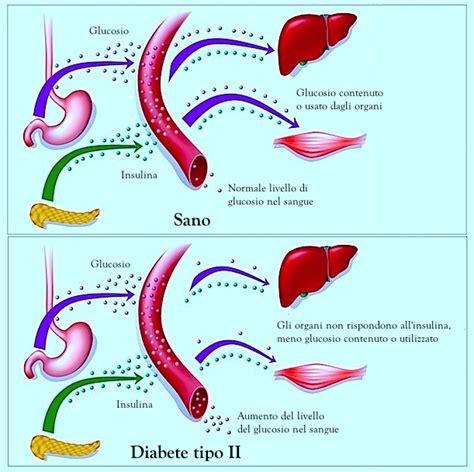 diabete 2 alimentazione le vere cause diabete mellito tipo 2 e la corretta