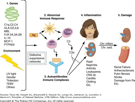 diagram sle image gallery sle pathogenesis