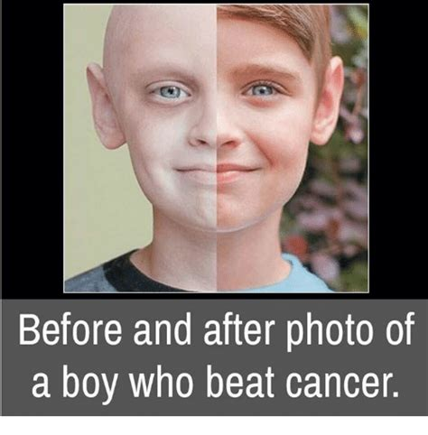 I Have Cancer Meme - before and after photo of a boy who beat cancer meme on