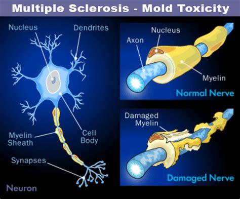 Detox Brain Damage by Lorida Detox Rapid Detox Opiate Detox