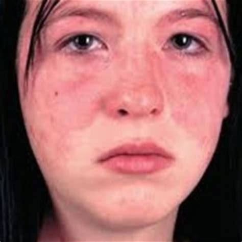 8 effective remedies and cures for lupus disease easy tips care health