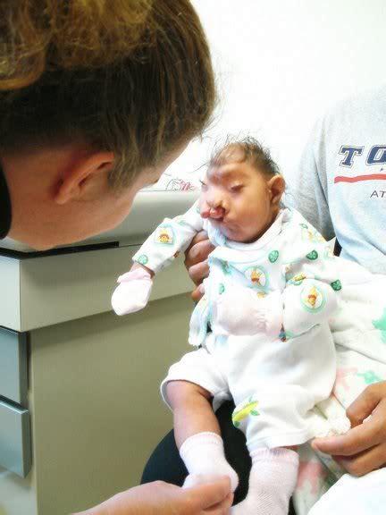 Samoan Deformed Baby After Birth Images