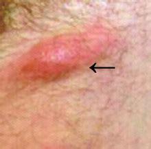 painful vaginal bumps single hard bump on labia majora