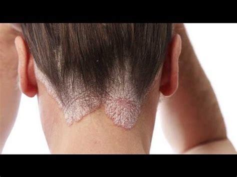 libro la piel de la psoriasis en los ni 241 os enfermedad de la piel youtube