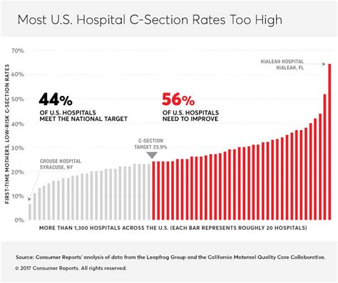 cesarean section rates by hospital your biggest c section risk may be your hospital