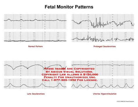 heart monitor pattern fetal heart tracing related keywords fetal heart tracing