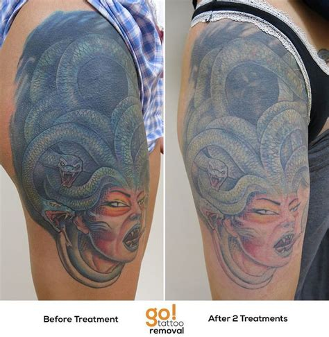 large tattoo removal 679 best images about removal in progress on