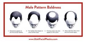 bandage hair shaped pattern baldness male pattern baldness treatment slc utah facial plastics