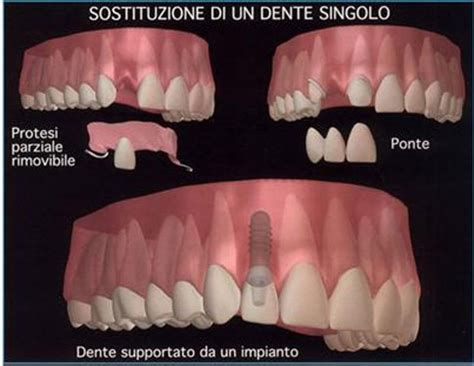 quanto costa una dentiera mobile anchilosi dentaria