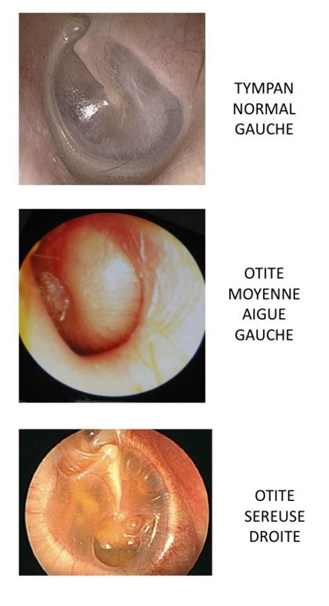 pathologies de l oreille