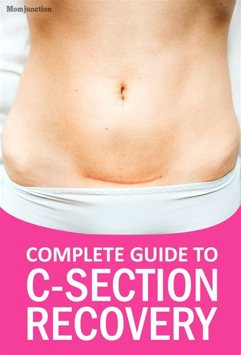 17 best ideas about c section recovery on c