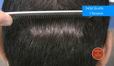 30000 hair graft cost hair transplant cost hair transplant surgery cost financing