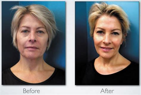 led light therapy before and after led phototherapy skin treatments near buffalo ny