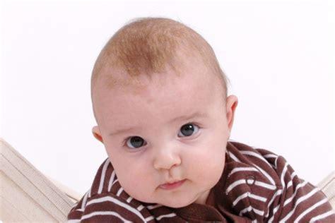 schuppen baby hat mein baby kopfgneis oder milchschorf babyartikel de