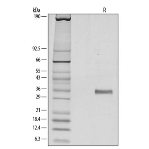 r protein code r d systems human dkk 1 recombinant protein 10ug r d