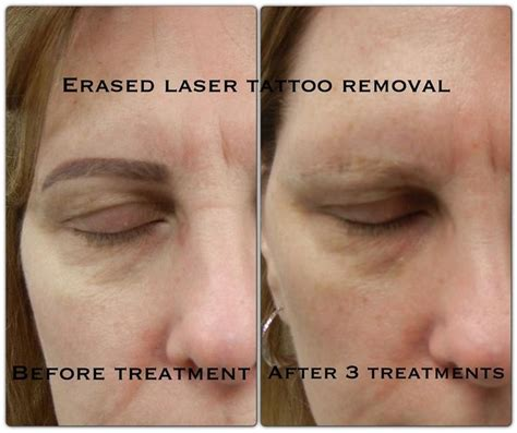 laser tattoo removal atlanta 11 best removal images on
