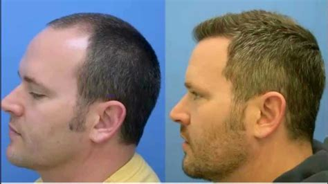 americas best hair transplant why go for best hair loss treatment in chandigarh