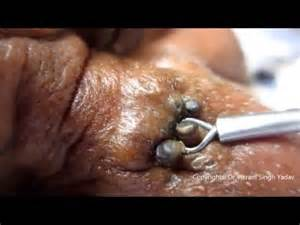 Blind Pimple Removal Teeny Tiny Holes In Your Skin Removal Of Enormous