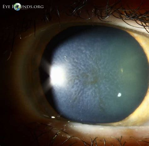 macular pattern dystrophy icd 9 asteroid hyalosis vs synchysis scintillans page 2 pics