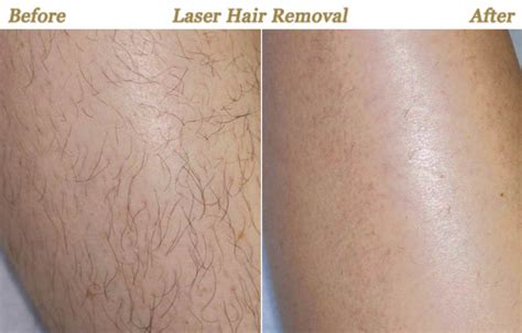 does laser hair removal hurt more than a tattoo best laser hair removal treatment in palm florida