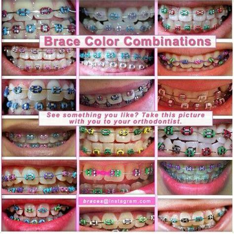 braces color combinations best 25 braces colors ideas on getting braces