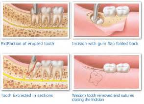 how to remove wisdom teeth at home wisdom teeth extraction and recovery processes