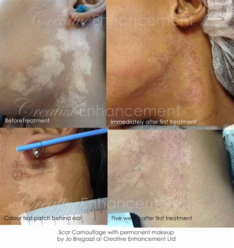 medical tattooing for scars scar camouflage for vitiligo by jo bregazzi jo bregazzi