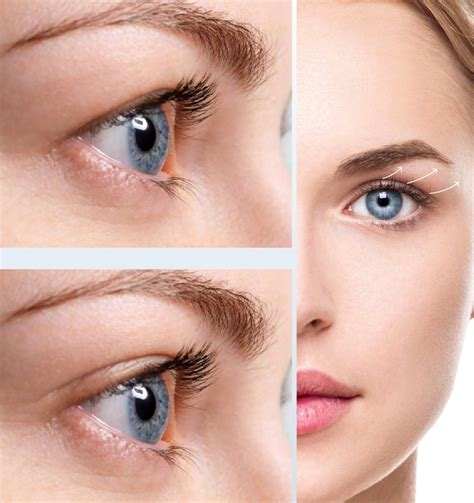reputable private clinic bradford non surgical eyelid