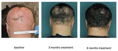 new treatment for alopecia 2014 london skin and hair clinic