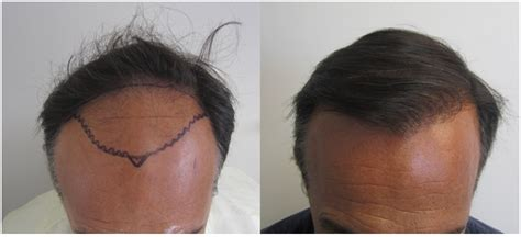 hair transplants 1000 graft coverage how much does hair transplant cost in la