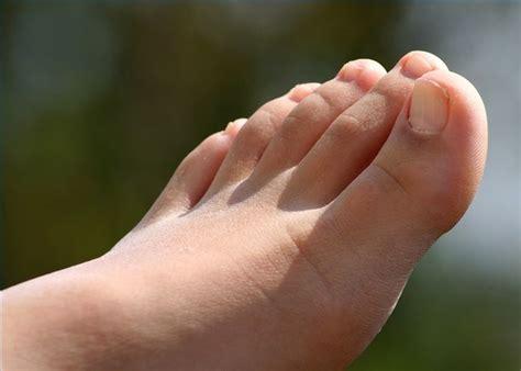 kill toe fungus fast toe toe fungus  toenails