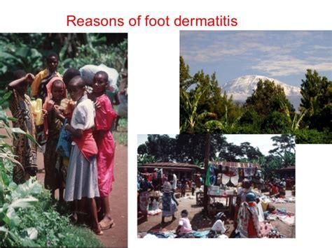 allergic skin diseases in tropical areas