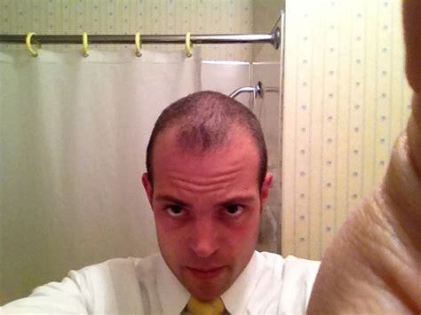 hair style temple bald spots style temple bald spots 10 best hairstyles for balding