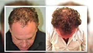 neograph timeline neograft fue hair transplant world leader in fue technology