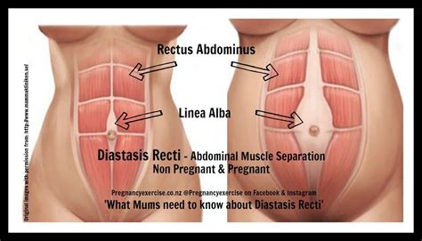diastasis recti what need to pregnancy exercise