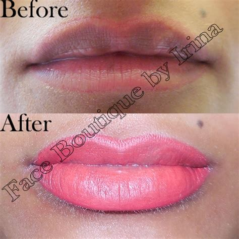 lip liner tattoo pros and cons face boutique by irina cosmetic medicine services