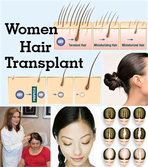 hair transplant in the philppines cost 17 images about albert tang on pinterest fue hair