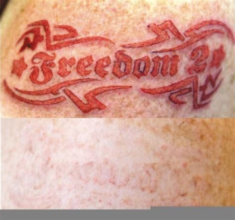 tca tattoo removal cream tca removal lawas