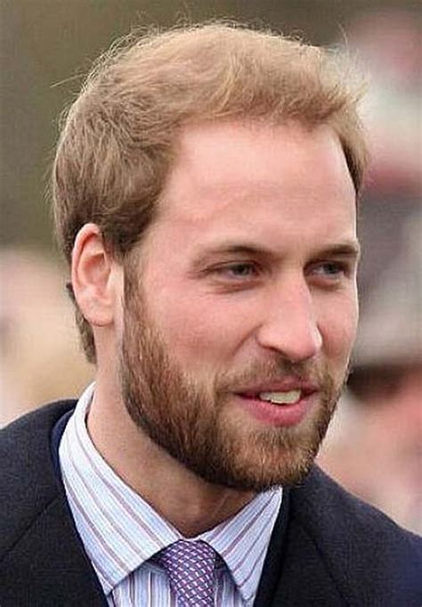 how to cover baldness from hairstyles for half bald women prince william haircut and haircolor 2014 2015 pictures
