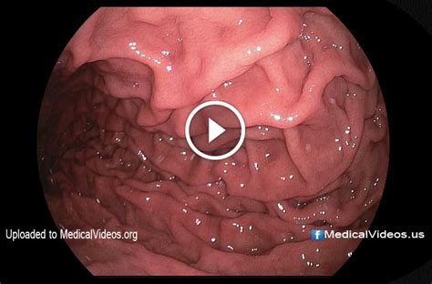 Inside Human Stomach | image gallery inside the human stomach