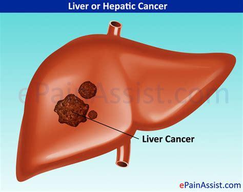 liver cancer liver cancer treatment causes symptoms signs prevention