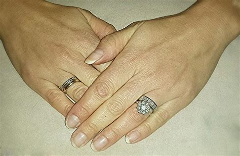 Wedding Ring Leaving Rash by Power Of Social Media Husband S Appeal Brings