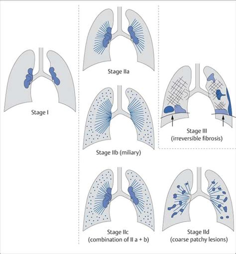 lung pattern classification fibrosing lung disease radiology key