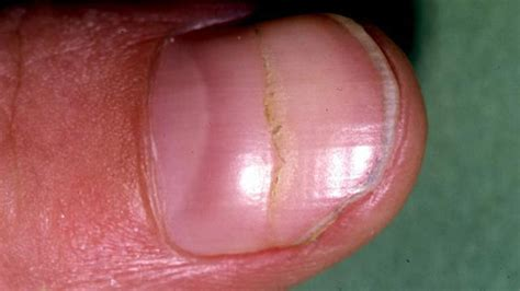 Middle Line Black black line on the nail causes treatments pictures and more