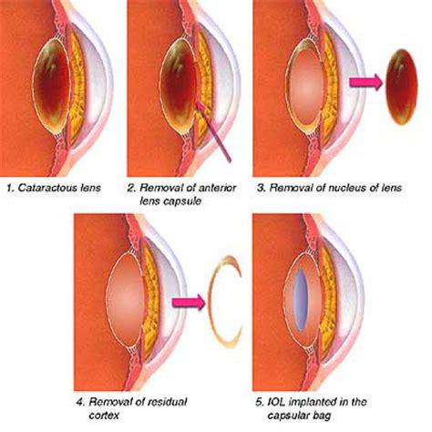 cataract surgery surgery cataract causes symptoms treatment surgery cataract
