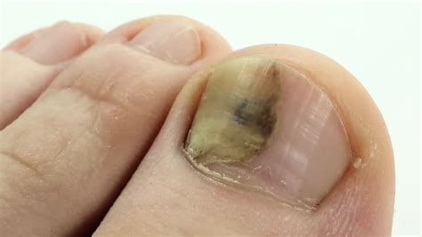 nail bed fungus toenails with fungal infection sick nail fungus of big