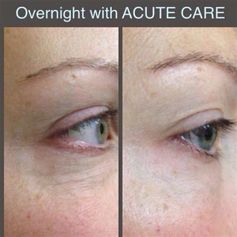 overnight care 10 best images about wrinkles on technology get started and tighten skin