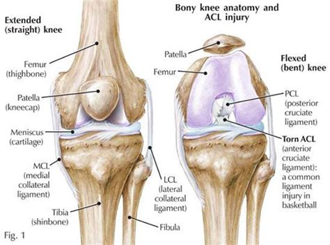 left knee ligaments diagram right knee acl and mcl sprains with bone bruising