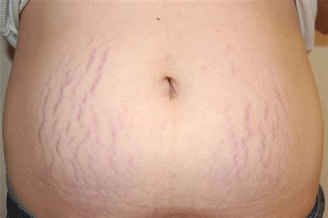 Stretch Marks by Stretch Support What Can You Do To Be